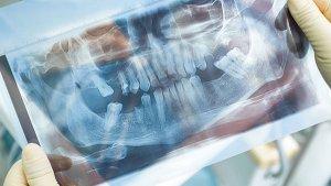 Mini Dental Implants (MDIs) illustration