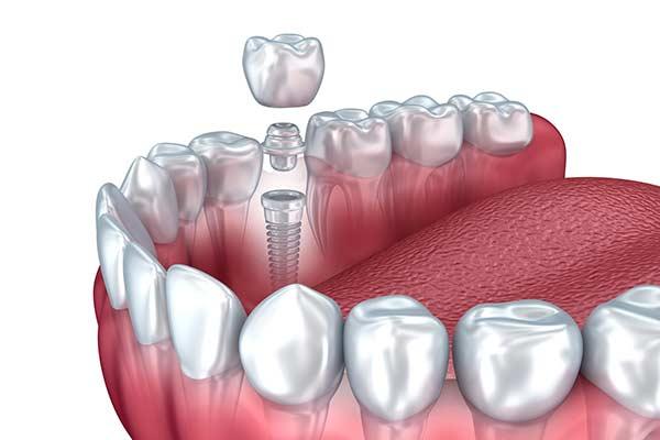 Dental implant illustration